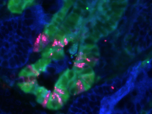 Stem cells (green) and Niche cells (pink) in intestinal cancer